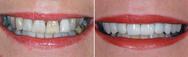 Before and after shots of a patient at Cherrybank Dental Spa who underwent professional whitening for staining to her teeth as well as treatment to improve the shape and overall appearance of her smile (cherrybankdentalspa.com)