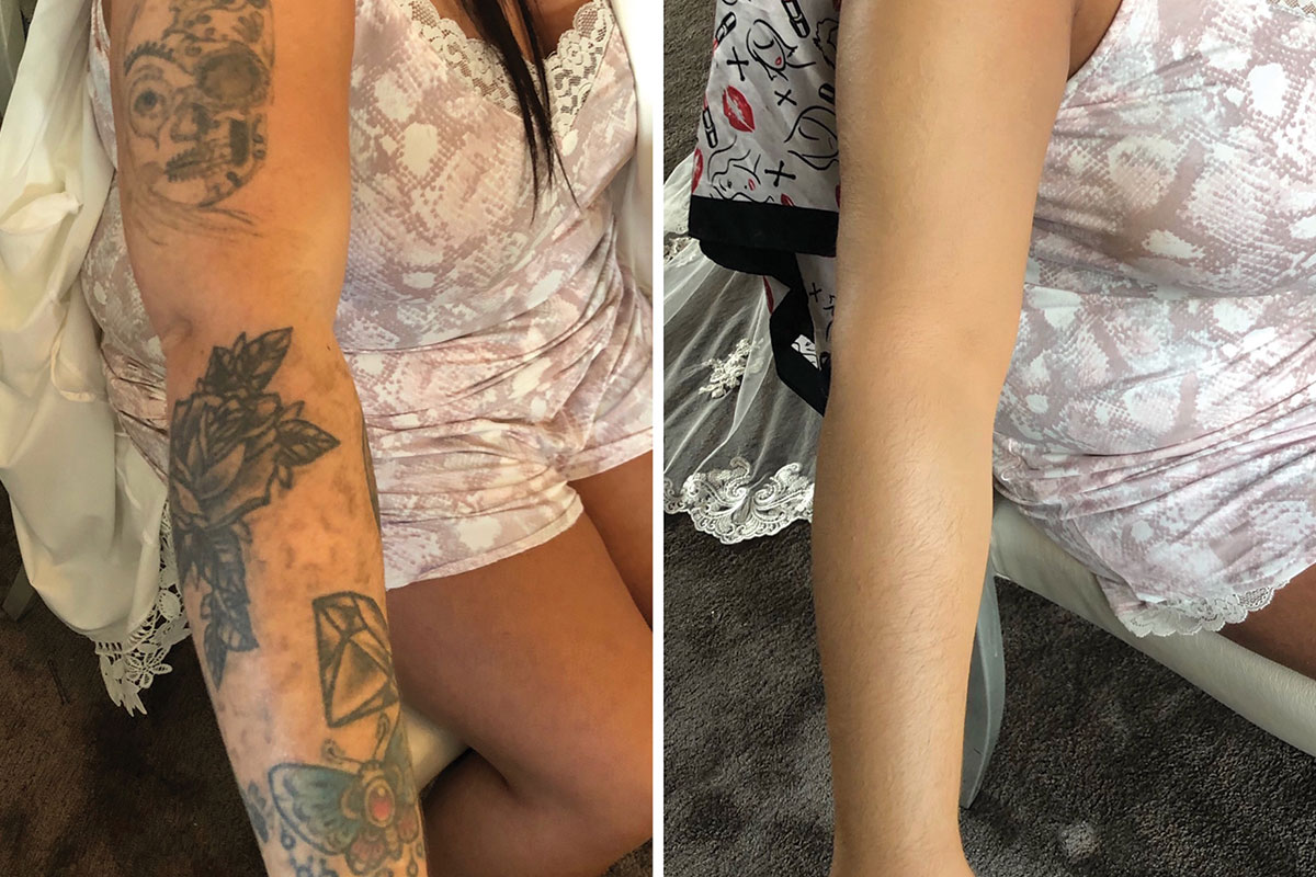 A before and after image of a bride's arm after having her tattoos covered by Makeup by Leigh Blaney